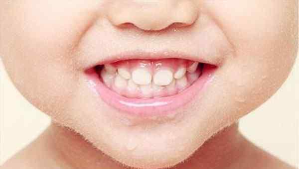 小孩有蛀牙需要补牙吗 小孩子有蛀牙需要补牙吗